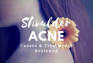 treating pimples on shoulders and upper arms