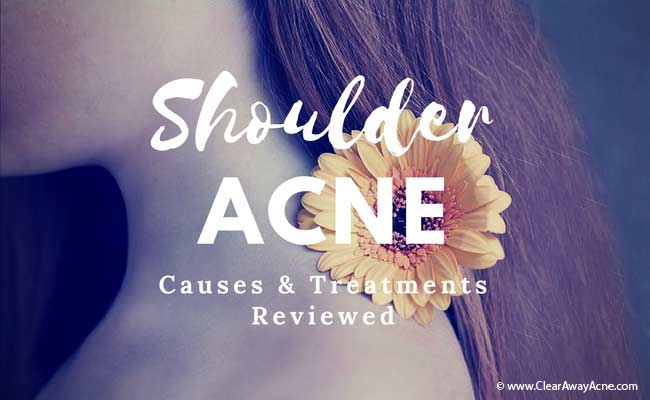 treating acne on shoulders the right way.