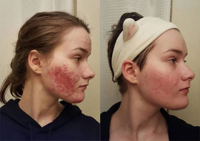 How To Get Rid Of Rosacea Effectively Top Treatments And
