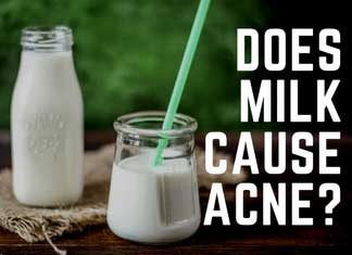 Acne-milk relationship debunked.