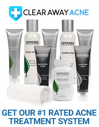 Our #1 Rated Acne Treatment System
