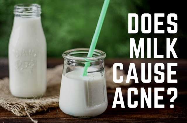Does dairy cause acne? Here's a research backed answer