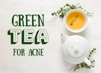Green tea - Is it the cure for acne?