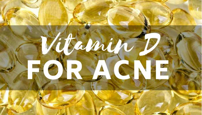 Researched Analysis on Vitamin D for Acne Treatment