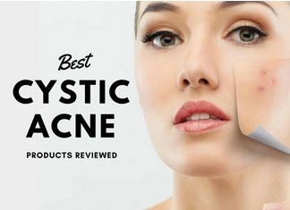 Reviewing the best Cystic Acne Products Once and For All