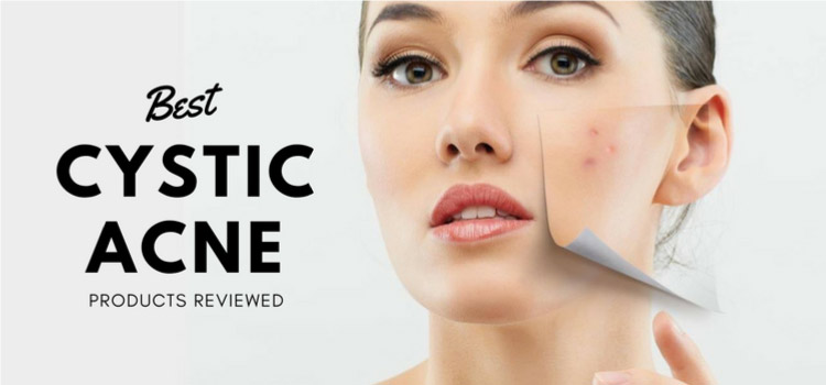 Best Products for Cystic Acne Reviewed