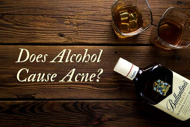 Does alcohol cause acne breakouts? Research-backed analysis