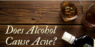 Does drinking cause acne? Let's find out!
