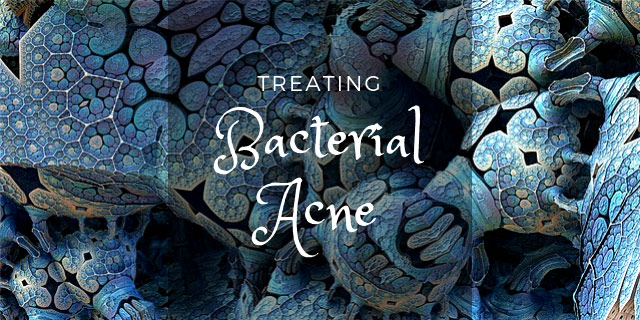 The complete guide to bacterial acne treatment