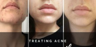 Lemon juice for mouth acne