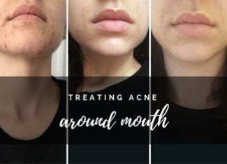 Acne Around Mouth What It Tells How To Fade It Fast Caa